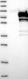 NBP1-85616 - TXNDC3 / SPTRX2