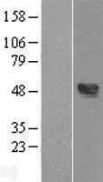 NBL1-17474 - TXNIP Lysate