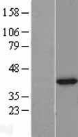 NBL1-11125 - TXNL2 Lysate