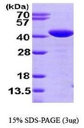 NBP1-44478 - Glutaredoxin-3 / GLRX3
