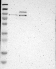 NBP1-83814 - TYW1 / RSAFD1