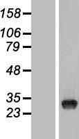 NBL1-17487 - TYW3 Lysate