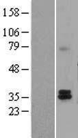 NBL1-16718 - Tafazzin / TAZ Lysate