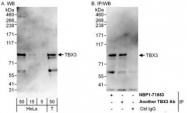 NBP1-71853 - TBX3