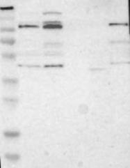NBP1-87377 - SDCCAG33 / TSHZ1