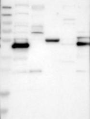 NBP1-85072 - Testin / TES