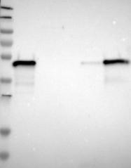 NBP1-87987 - Testin / TES