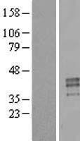 NBL1-14844 - Testisin Lysate