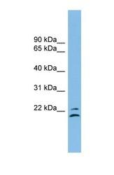 NBP1-54405 - Tetraspanin-1 (TSPAN1)
