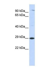 NBP1-59226 - Tetraspanin-2 (TSPAN2)