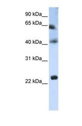NBP1-62310 - Tetraspanin-3