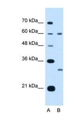 NBP1-62646 - Tetraspanin-32 (TSPAN32)