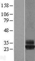 NBL1-17376 - Tetraspanin-4 Lysate