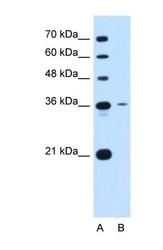 NBP1-69337 - Tetraspanin-5 (TSPAN5)