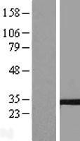 NBL1-17379 - Tetraspanin-5 Lysate