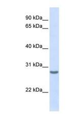 NBP1-59047 - Tetraspanin-6 (TSPAN6)