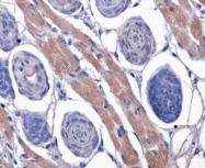 NBP1-71770 - Thrombin receptor / F2R