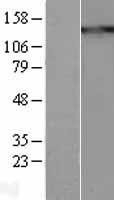 NBL1-16878 - Thrombospondin Lysate