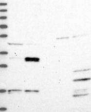 NBP1-92505 - Thymidine kinase 2 (TK2)