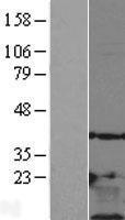 NBL1-17127 - Thymosin beta 10 Lysate