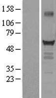 NBL1-16895 - Thyroid Hormone Receptor alpha Lysate