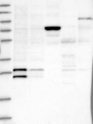 NBP1-87427 - Thyrotropin-releasing hormone (TRH)