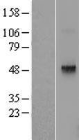 NBL1-17269 - Thyrotropin-Releasing Hormone Receptor Lysate