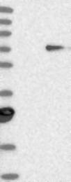 NBP1-87491 - t-PA / PLAT