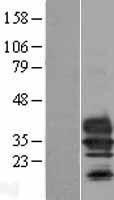 NBL1-17069 - Tmem27 Lysate