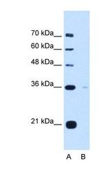 NBP1-69580 - Torsin-1B (TOR1B)