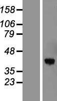 NBL1-17198 - Torsin 1B Lysate