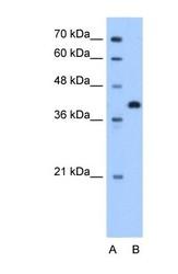 NBP1-60002 - Torsin-2A (TOR2A)