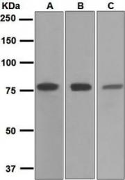 NBP1-95705 - Transferrin