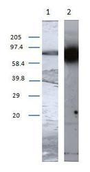 NB100-1844 - Transglutaminase-1 (TGM1)