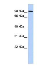NBP1-56535 - Transglutaminase-1 (TGM1)