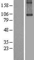NBL1-16865 - Transglutaminase Lysate