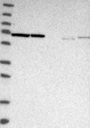 NBP1-87441 - Transketolase (TKT)