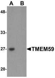 NBP1-76497 - TMEM59