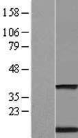 NBL1-17093 - Transmembrane protein 59 Lysate