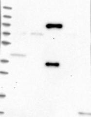 NBP1-86908 - Treacle protein / TCOF1