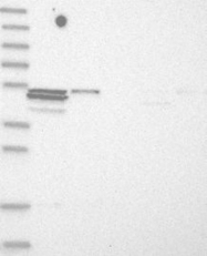 NBP1-88609 - TRIM11 / RNF92