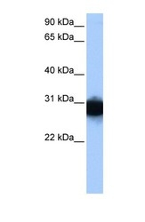 NBP1-52881 - Triosephosphate isomerase (TPI1)