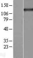 NBL1-17224 - Tripeptidyl peptidase II Lysate