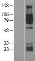 NBL1-13836 - TrkB Lysate