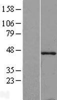 NBL1-17115 - Tropomodulin-1 (TMOD1) Lysate