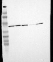 NBP1-86870 - Tropomodulin-3 (TMOD3)