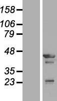 NBL1-17117 - Tropomodulin-3 (TMOD3) Lysate