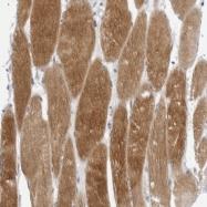 NBP1-80745 - Tropomodulin-4 (TMOD4)