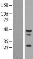 NBL1-17118 - Tropomodulin-4 (TMOD4) Lysate