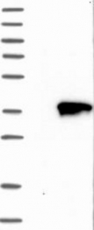 NBP1-89896 - Tropomyosin-1 (TPM1)